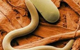 trichinella spirallis